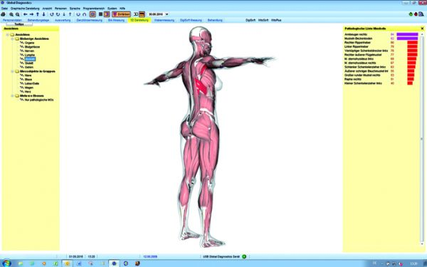 Global Diagnostics 3D